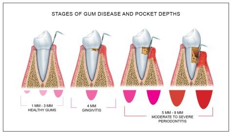 gum_disease_pocket_depth