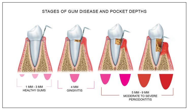 gum_disease_pocket_depth